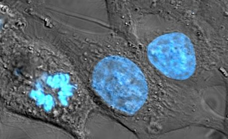 HeLa cells with blue nuclear stain